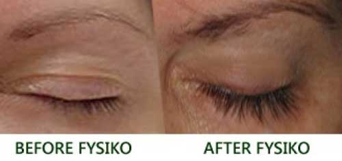 Fysiko-before-and-after