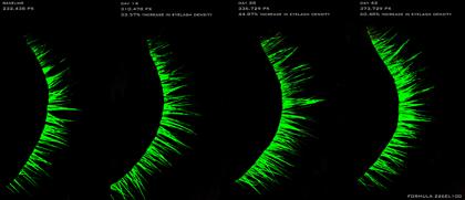 How To Enhance The Effectiveness of Envyderm Eyelash Enhancement And Conditioning Nighttime Serum